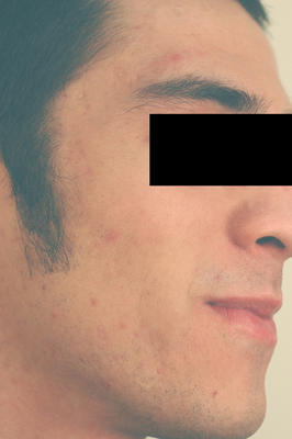 Laser Acne Treatment after 82963