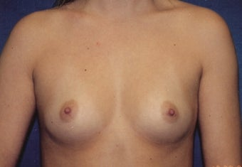 Breast Augmentation before 266923