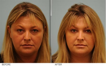 Restylane and Short Term Botox before 379785