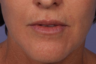 Botox and Juvederm Ultra Plus to Upper Lip after 308354