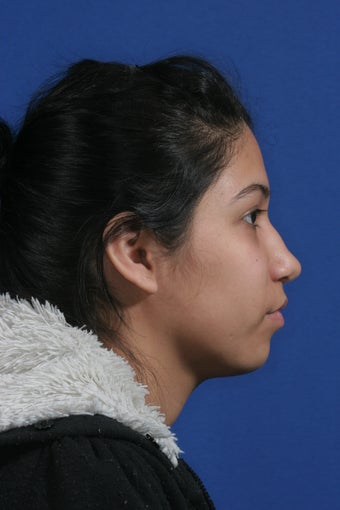 nasal airway surgery with cosmetic benefits before 478797