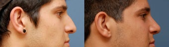 Rhinoplasty, Ethnic Iranian before 346238