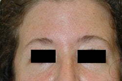 Botox for forehead lines after 93347