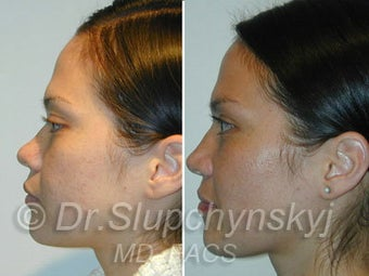 Asian Rhinoplasty 624582