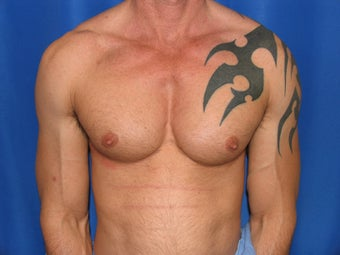 Pec Implants  after 420119