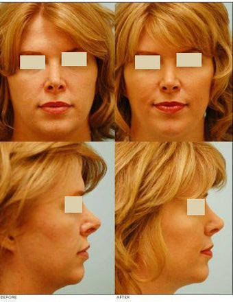Revision/Corrective Rhinoplasty before 136572
