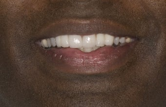 Porcelain Crowns after 374775