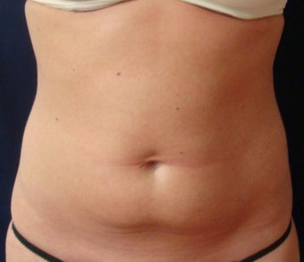 Smart Water Lipo before 216523
