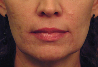 Yag Laser Skin Tightening  before 622085