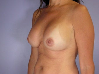 Breast Revision Surgery  after 307256