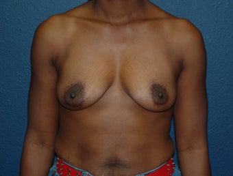 Breast Augmentation before 575278