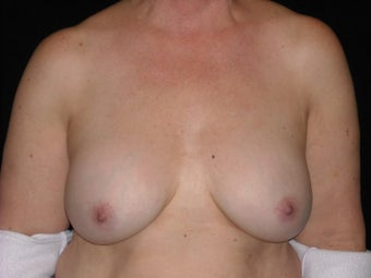 Breast implant removal before 566066