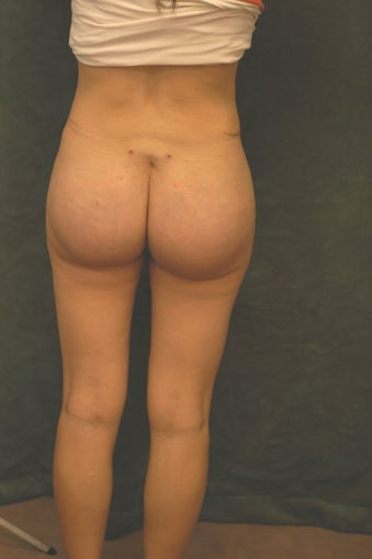Women's Buttocks Augmentation   518135