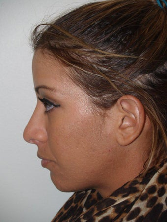 Revision Rhinoplasty before 481039