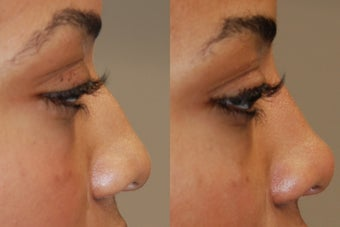 Non-Surgical Rhinoplasty with Silikon-1000 before 152689