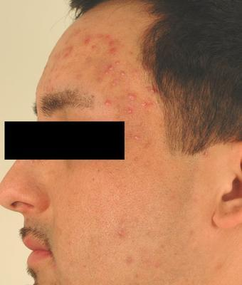 Laser Acne Treatment before 82957