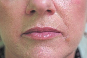 Restylane lip injections  after 93361