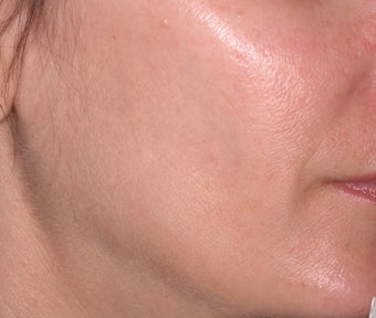 Ulthera Laser Skin Tightening before 346276
