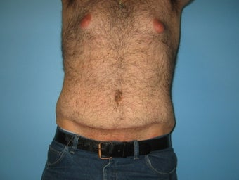 Male tummy tuck after 448698