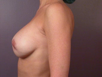 Breast Revision after 307243
