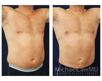 Liposuction after 495045