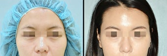 Rhinoplasty before 650753