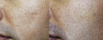 Acne Scar Treated with Sculptra before 182794