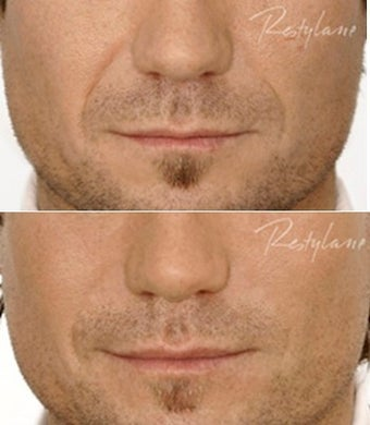 Restylane Male Nasolabial Folds Before After before 6285