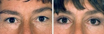 Blepharoplasty before 643225