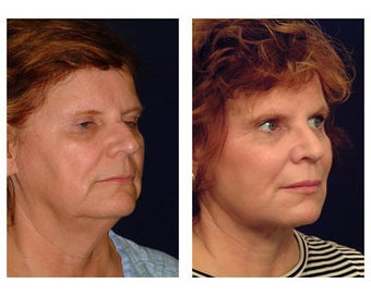 Lower Face and Neck Lift before 355094