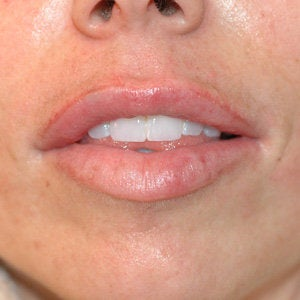 Uneven Lips Before and After Restylane after 179159