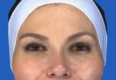 Botox Crow's Feet after 469033
