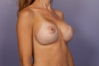 Breast Implant Revision after 622832