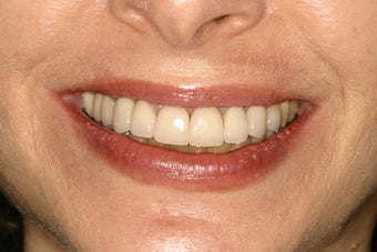 Tetracycline Stains treated with Veneers before 114219