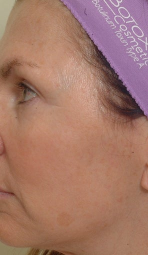 Pearl Laser Treatment before 102776