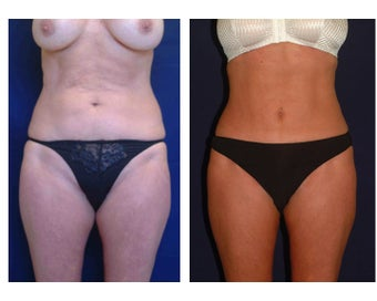 Tummy Tuck / Abdominoplasty before 55019