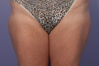 CoolSculpting Outer Thighs/Saddlebags before 429669