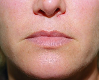 Lip lift, corner of lip lift, and filler in lips before 299913