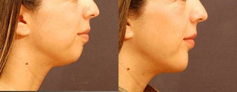 Chin Implant Surgery before 534599