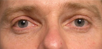 Restylane upper eyelid hollows after 219711