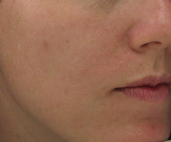Hyperpigmentation treated with Obagi for 3 months after 52832