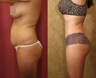 tummy tuck after 307970