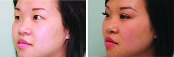 Double Eyelid Surgery Suture 548933