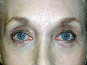 Upper Eyelid Ptosis Repair And Blepharoplasty; Lower Eyelid Blepharoplasty And Ectropion Repair; Endoscopic Brow Lift after 239201