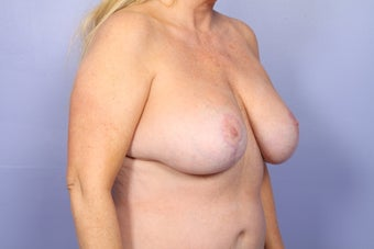 Breast Lift and Implants  302593