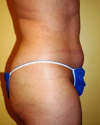 Body Jet (water assisted) liposuction before 235770