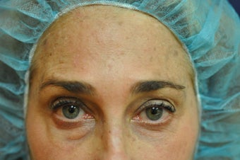 Botox after 595060