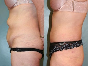 Tummy Tuck before 218301
