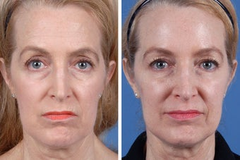 Restylane and Botox Cosmetic before 356495