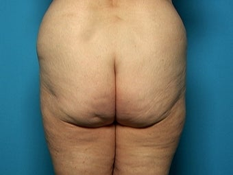 Buttock and Outer Thigh Lift before 212220